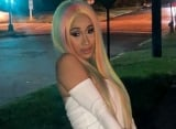 Cardi B Seeks Advice From Fans to Get Rid of Post-Baby Marks