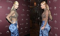 Iggy Azalea Sparks Butt Implant Rumors. What Expert Says?