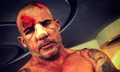Dominic Purcell Seriously Injured on the Set of 'Prison Break'