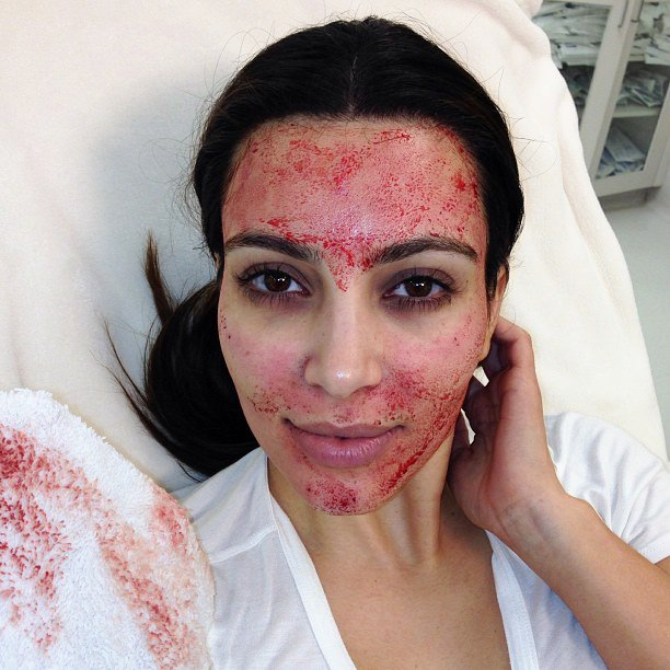 Kim Kardashian Gets Painful 'Vampire' Facial to Stay Young
